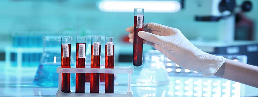 Vérvétel, laborvizsgálat