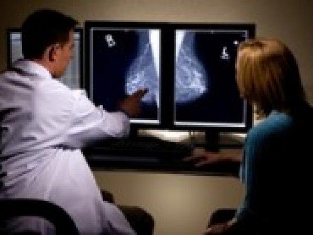 Emlőrák genetikai vizsgálat - BRCA1, BRCA2