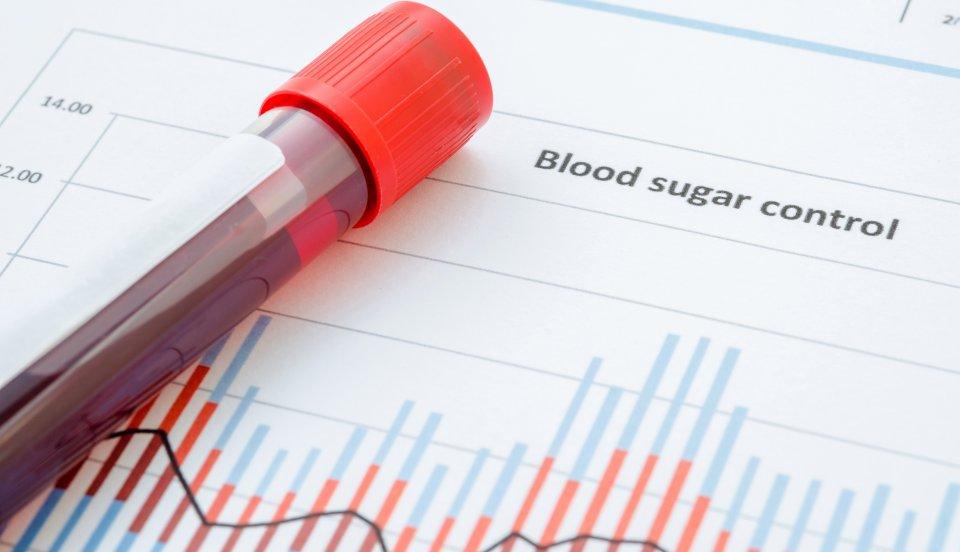 Terheléses cukorvizsgálat
